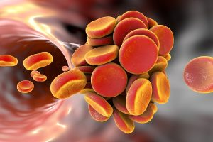 Antiplatelet and antithrombotic treatment for secondary